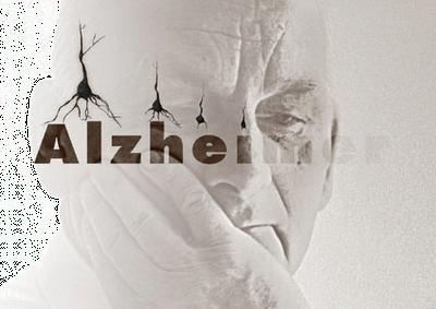 Signos iniciales del Alzheimer, en 'Lo importante es la salud'